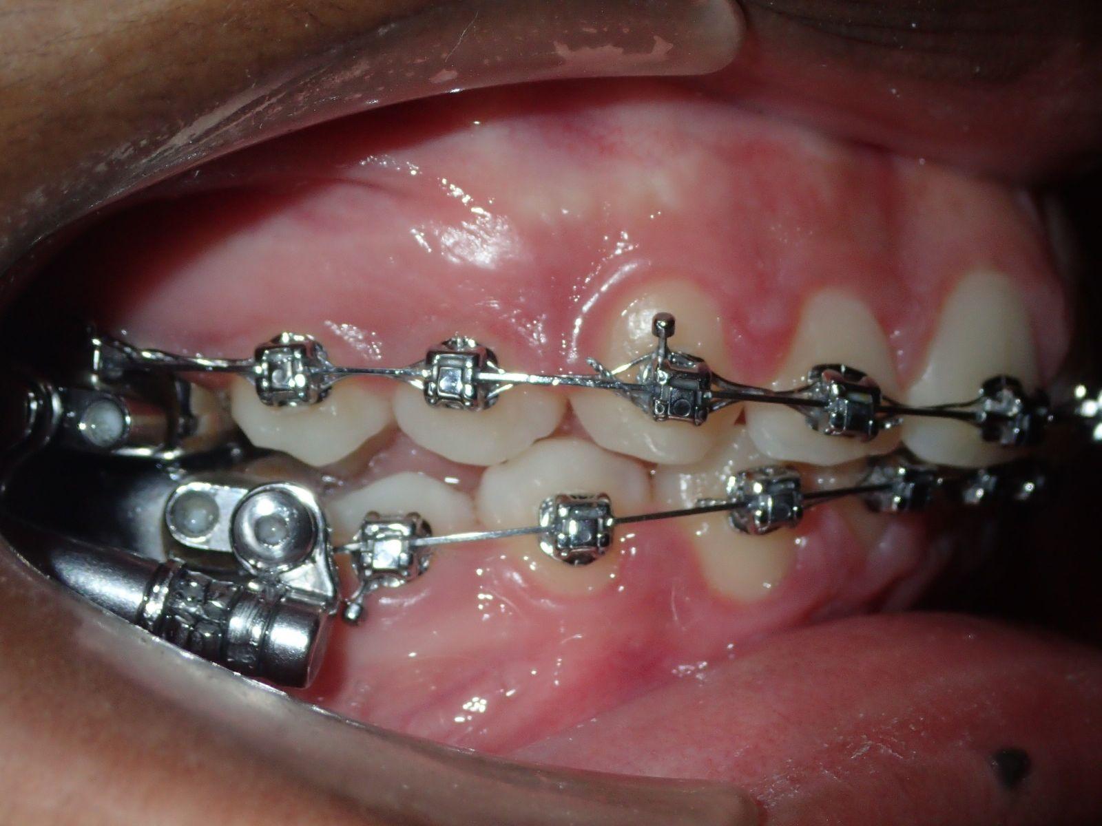 Herbst Appliance Bahamas Orthodontic Center Nassau Freeport